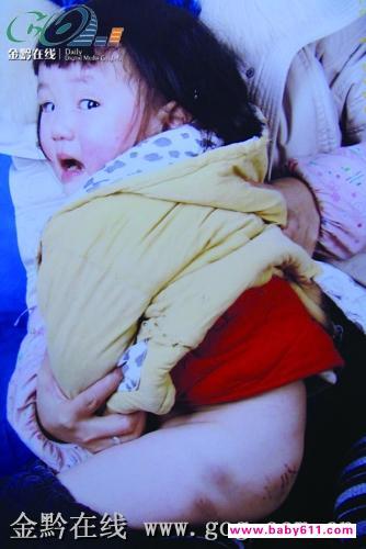 两岁女孩幼儿园惨遭 鞭刑