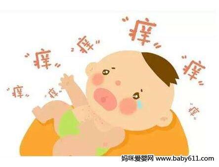 婴儿湿疹 宝妈一定要警惕3大湿疹误区