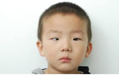 sxda童隐斜眼有何症状